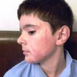 Mihaita nach 1,5 Jahren Behandlung in Deutschland (2)