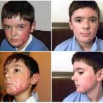 Mihaita nach 1,5 Jahren Behandlung in Deutschland (3)